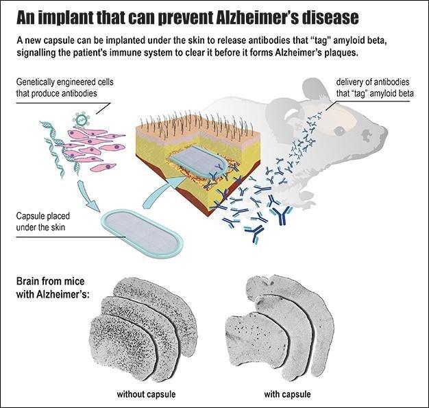Alzheimer da implantı tedavi araştırmaları